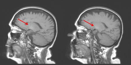 ENCEFALOPATIA HEPATICA RNM CEREBRAL