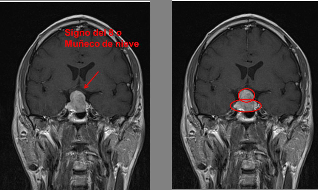 Cómo abordar el tumor de hipófisis