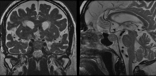 Masa hipofisaria con compresión del quiasma