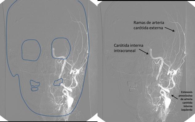 Figura 3. Arteriografía cerebral. Proyección anteroposterior.