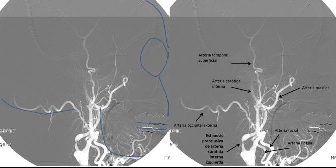 Figura 4. Arteriografía cerebral.Proyección lateral.