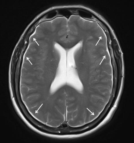 Imagen 2. Higromas subdurales bilaterales