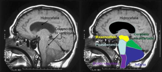 Imagen 3. Infarto cerebeloso con edema