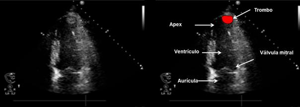 Trombo ventricular izquierdo