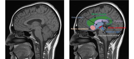 Representación de los núeleos principales de los sistemas dopaminérgicos