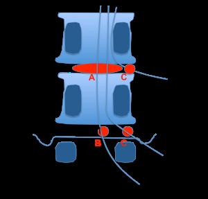 cuerpo vertebral 3