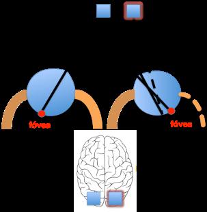 Figura 2. Diplopía binocular por debilidad del músculo recto externo.
